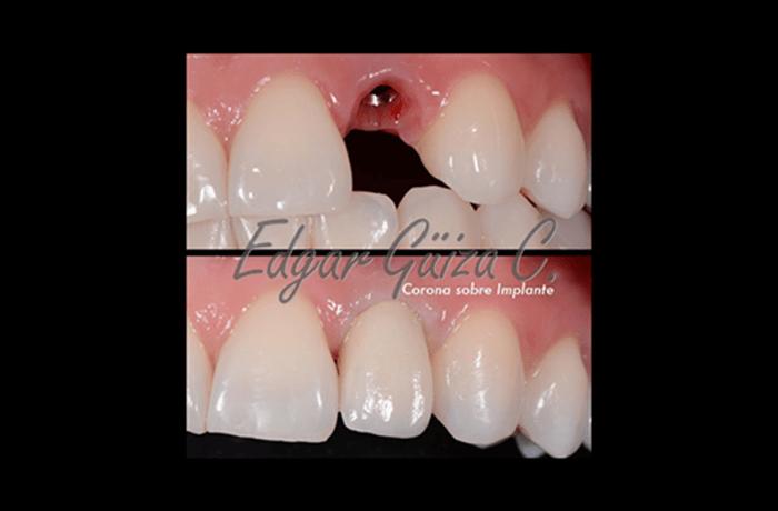 Rehabilitación del diente 22