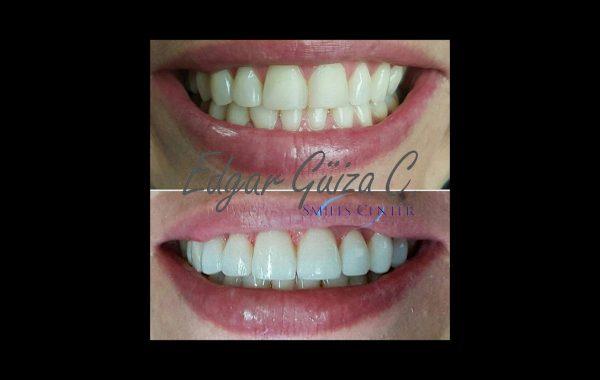 Diseño de Sonrisa –  Carillas Polimericas.
