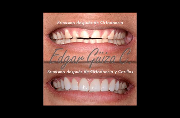 Caso de Bruxismo después de ortodoncia y carillas